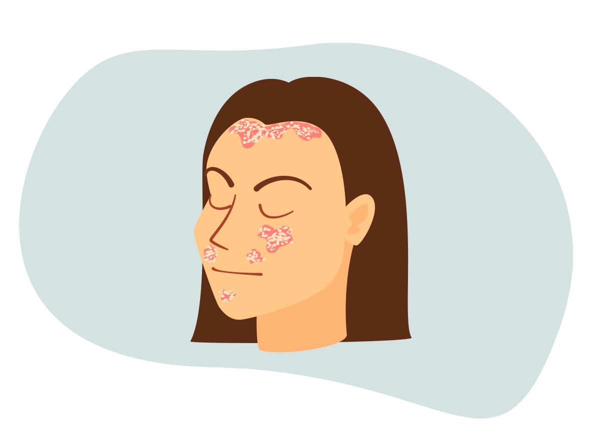 psoriase-e-dor-comum